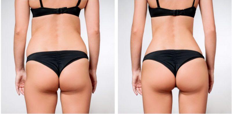 wat-kost-een-liposuctie-voor-en-na